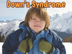 I KNOW SOMEONE WITH DOWNS SYNDROME